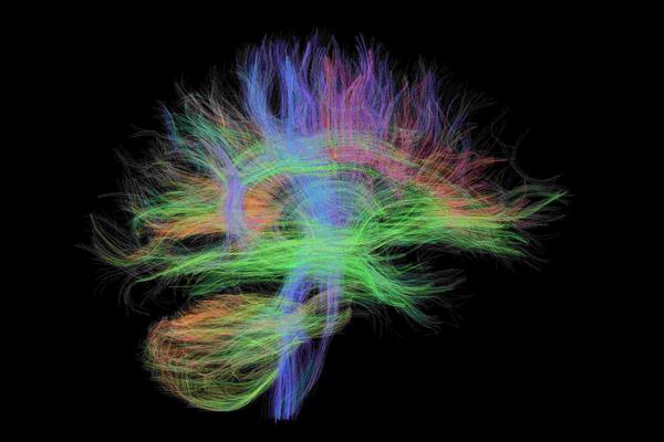 Neuro-image of the brain.